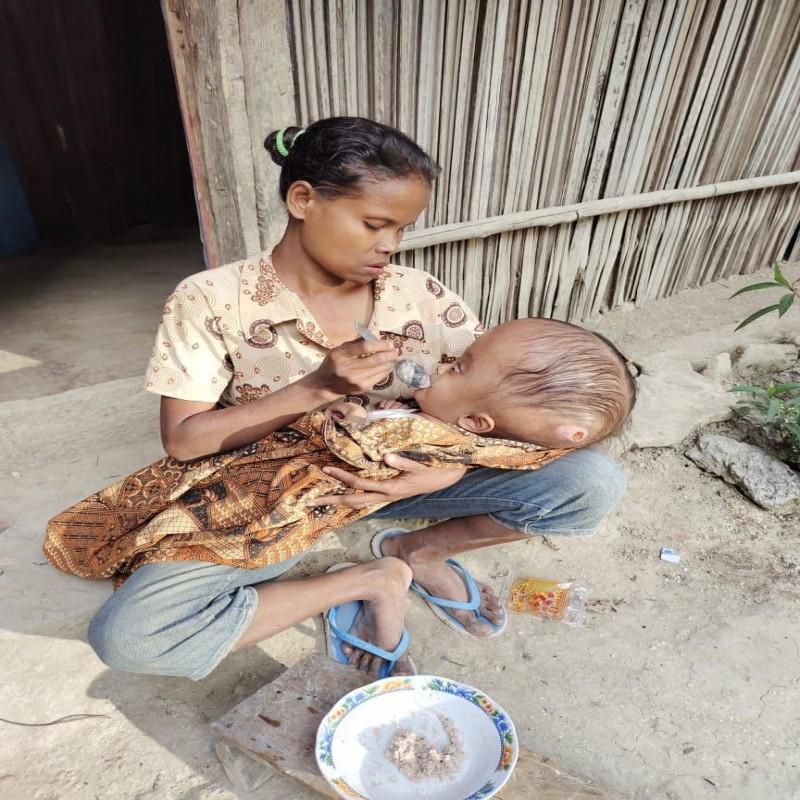 Bantu Moniva Melawan Hidrocefalus